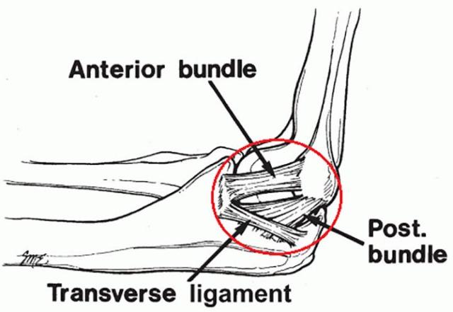 [자료=미 근신경학회] 팔꿈치 척골 측부인대(Ulnar Collateral Ligament)의 구성. UCL은 크게 전방 속(Anterior), 후방 사경속(Posterior), 횡 속(Transverse)으로 구성되어 있다. 이 가운데 어느 부위에 어느 정도의 손상을 입었는지에 따라 토미 존 수술 여부가 결정된다.